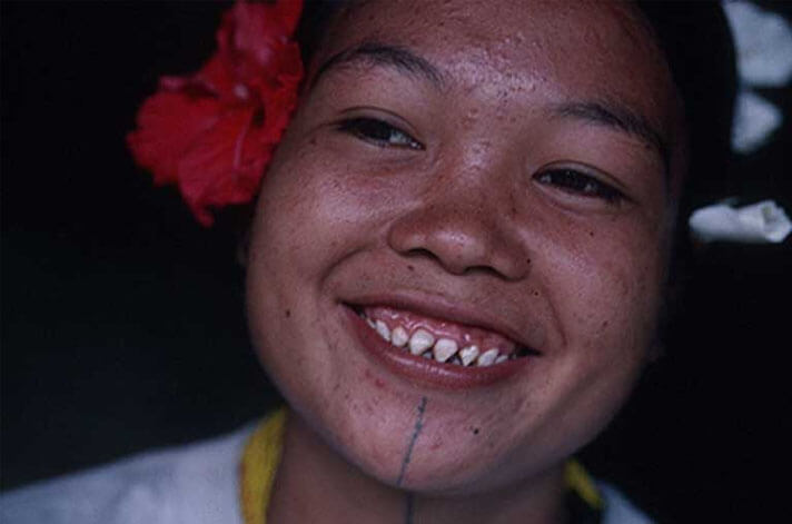 Sharp teeth of Mentawai individuals – Kalimantan